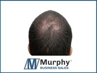hair replacement pennsylvania - 1