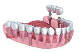 dentures dental ceramic lab - 4