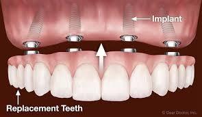 dentures dental ceramic lab - 5